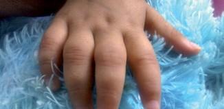 Rhumatologie pédiatrique - Traitements et stratégies