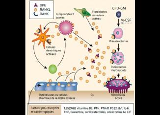 Effets osseux des biomédicaments au cours des rhumatismes inflammatoires - Les dernières données