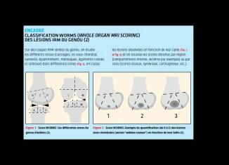 Que montre l'IRM du genou normal ?