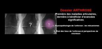 Arthrose : première des maladies articulaires, dernière à bénéficier d'avancées significatives