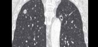 Le poumon dans la polyarthrite rhumatoïde - Un organe fréquemment touché