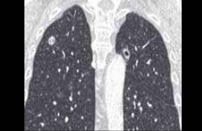 Le poumon dans la polyarthrite rhumatoïde - Un organe fréquemment ...