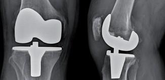 Activités physique et sportive après prothèses totales de hanche et de genou