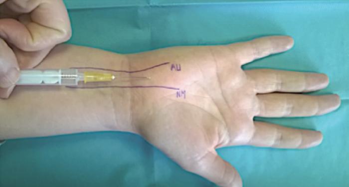 Le syndrome du canal carpien : place de l'échographie - Rhumatos